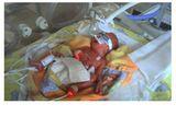 Helena - 12 Wochen zu früh geboren