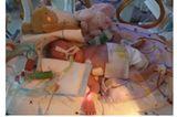 Filippa - zehn Wochen zu früh geboren
