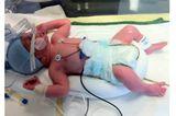 Luka - 6 Wochen zu früh geboren
