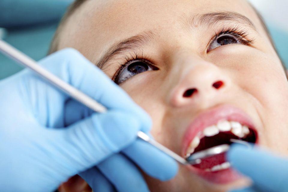 Abgebrochenen Zahn behandeln