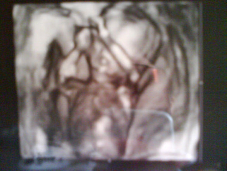Ultraschallbild Baby