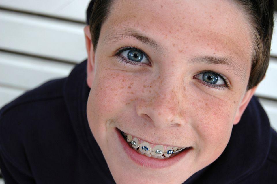 Wann brauchen Kinder eine Zahnspange?