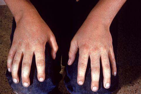 Hände mit Ringelröteln