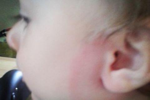 Familymag: Woran man beim Kind Borreliose erkennt und was man dann NICHT tun sollte