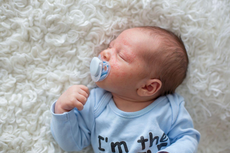 Neugeborenes mit Akne