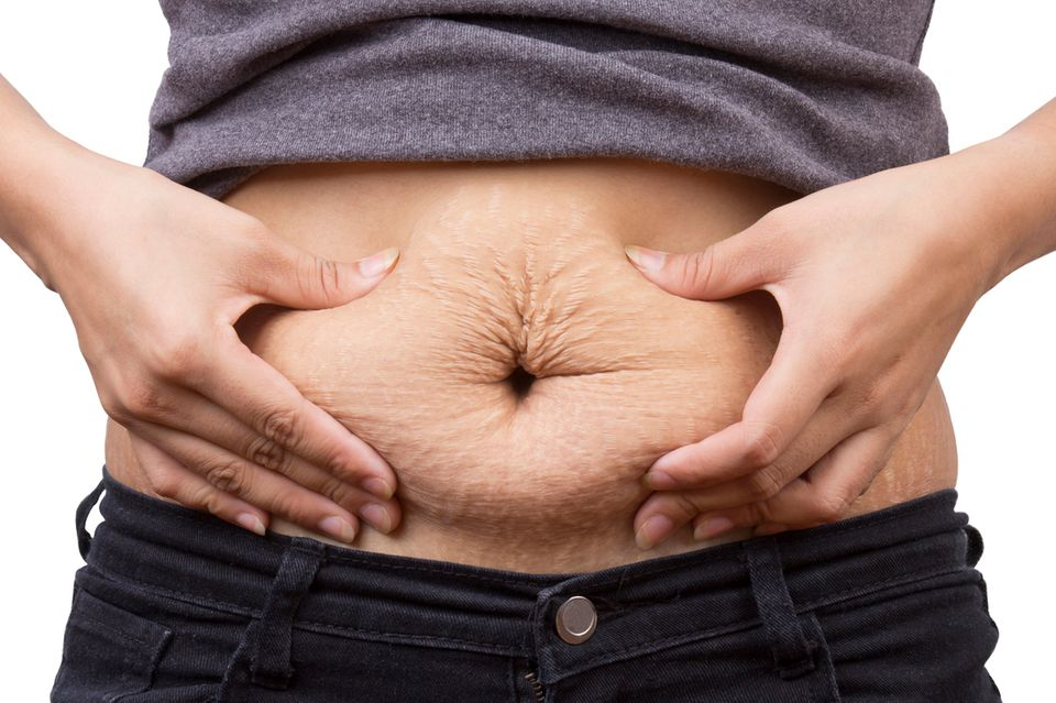 Bauch was tun hängender Kann man