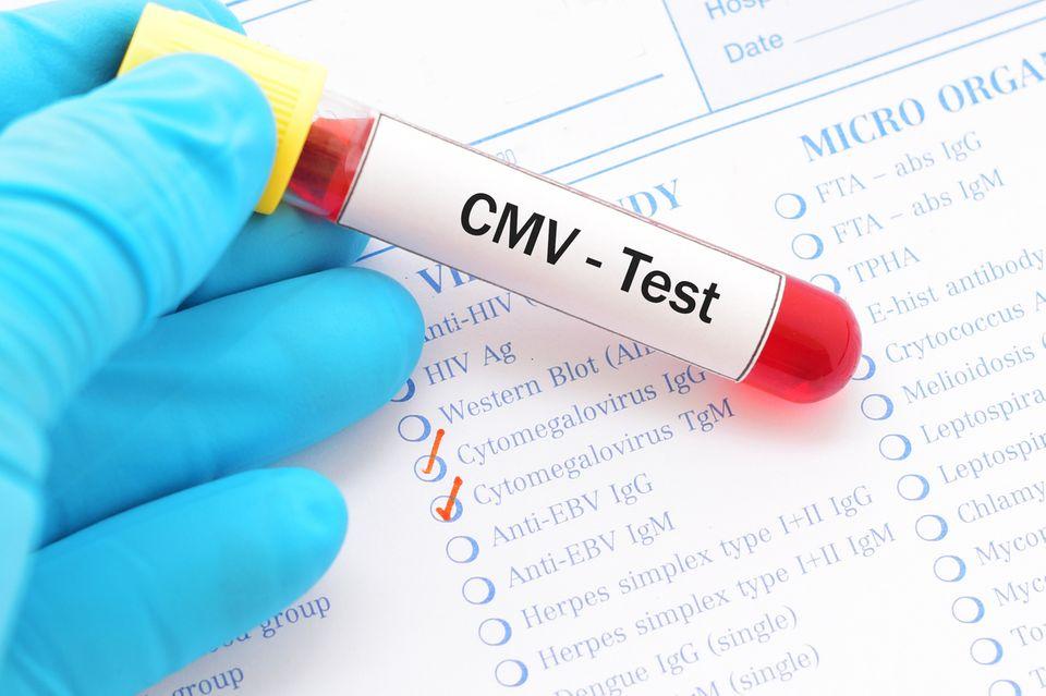 CMV-Test