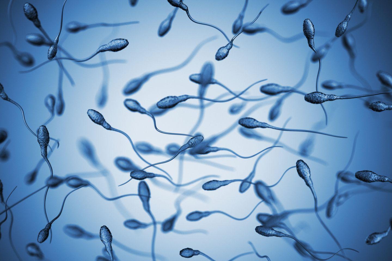 Spermien, die in unterschiedliche Richtungen schwimmen.