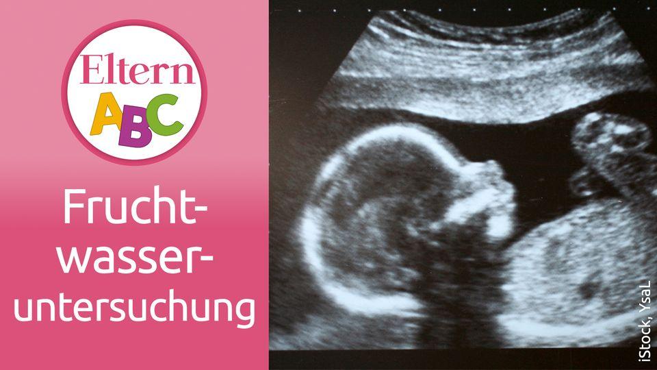 Fruchtwasseruntersuchung: Banges Warten auf das Ergebnis der Amniozentese