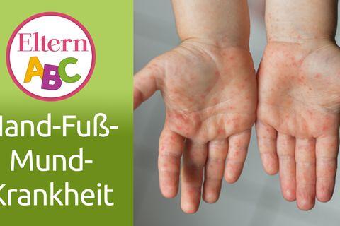 Hand-Fuß-Mund