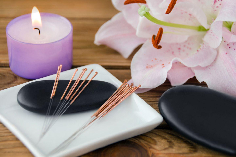 Akupunkturnadeln liegen bereit