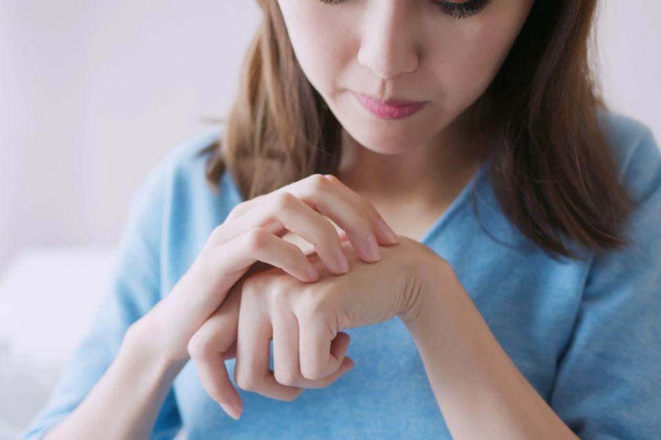 Frau kratzt sich die Hände