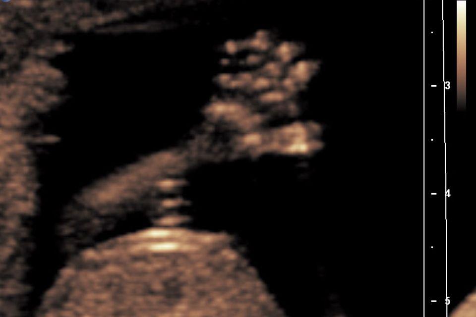 12. Schwangerschaftswoche (12. SSW)