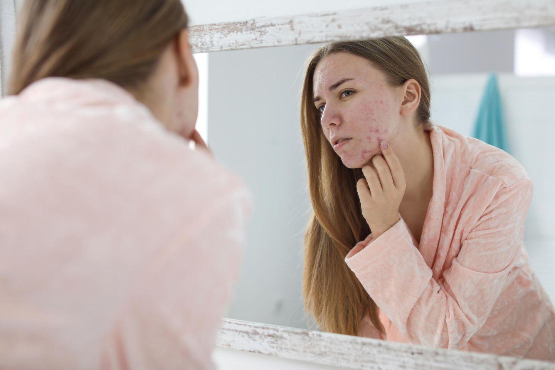 Pickel in der Schwangerschaft: Frau betrachtet sich im Spiegel