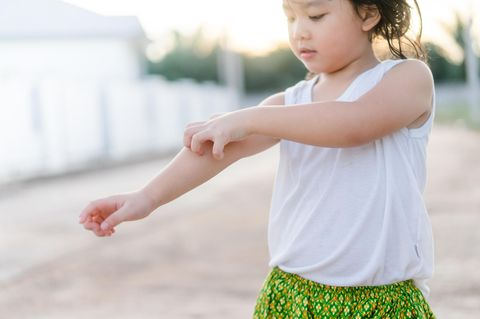 Krätze: Mädchen kratzt sich am Arm
